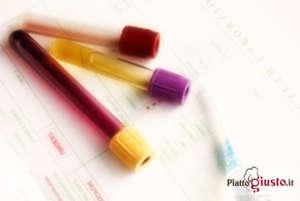 urine-colore-3